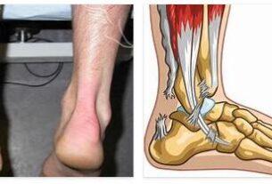 Achilles tendon tear