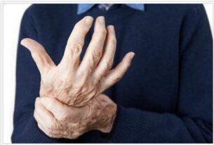 Alien Hand Syndrome Basics